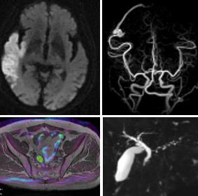 MRI(GE社製SIGNAPioneer3T)